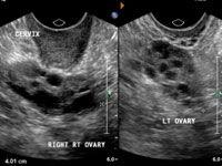 hemorrhagic corpus luteum ultrasound
