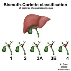 The Bismuth-Corlette classification defines the anatomic location of the tumor, as shown. This is useful in deciding whether resection or palliative treatment is optimal, as well as the type of surgery. Surgical candidates cannot be determined by this classification alone. Read more here: http://radiopaedia.org/articles/bismuth-corlette-classification