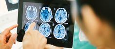 InfoNavWeb                       Informação, Notícias,Videos, Diversão, Games e Tecnologia.  : Existe ligação entre proteína do cérebro, zika e m...