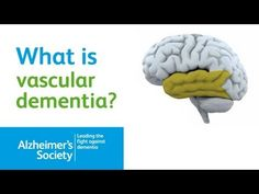 What is Vascular Dementia? Alzheimer's Society Dementia Brain Video