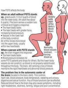 An explanation of what a patient with PoTS (Postural orthostatic Tachycardia Syndrome) or Dysautonomia experiences when they try to stand up.