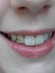 Dental Jewelry - Us Wood Crafting Dental Art, Dental Teeth, Dental Hygiene, Smile Dental, Jewelry Tags, Tooth Jewelry, Dental Jewelry, Diamond Teeth, Grills Teeth