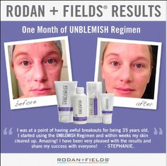 Rodan+Fields Unblemish regimen for adult acne. All products come with a 60 day money back guarantee!