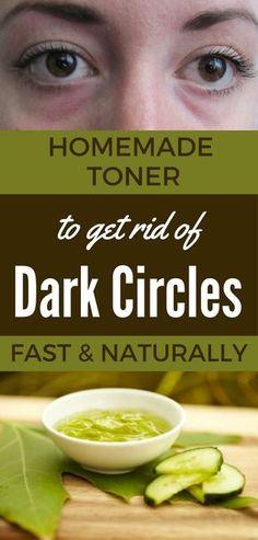 Homemade Toner to Get Rid of Dark Circles Fast and Naturally
