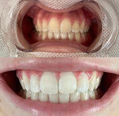 Dental Braces, Teeth Whitening, Tooth Bleaching