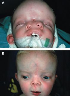 Successful surgical outcome of #diprosopus (two-faced) baby