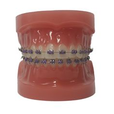 Customize Your Colors - North Portland Orthodontics - Oregon - Dr. Braces Bands, Braces Tips, Dental Braces, Teeth Braces, Dental Care, Braces Transformation, Cute Braces Colors, Getting Braces, Cute Tooth