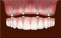 Dental implants are used to support one or more false teeth. They are best for people with missing teeth. Clinica Beautiful Smile helps you with dental implant treatment, bringing back your confident smile. Implant Dentistry, Cosmetic Dentistry, Teeth Implants, Dental Implants, Dental Health, Dental Care, Oral Health, Dental Pictures, Dental Bridge