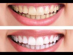 Come Avere Denti Bianchi - Pulizia Dei Denti - Sbiancamento Dei Denti - ...