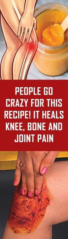 Natural Cures for Arthritis Pain - - People Go Crazy For This Recipe! It Heals Knee, Bone and Joint Pain - Arthritis Remedies Hands Natural Cures Natural Health Remedies, Natural Cures, Knee Bones, Natural Cure For Arthritis, Knee Pain Relief, Arthritis Remedies, Bone And Joint, Natural Medicine, The Cure