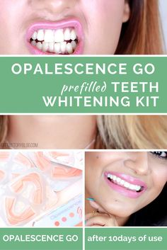 I Tried Opalescence Go Teeth Whitening Kit Amp This Is What