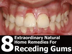 There are natural home remedies for receding gums that can help to stop the problem and promote better overall gum health. 8 Natural Home Remedies for Receding Gums Gum Health, Teeth Health, Healthy Teeth, Dental Health, Oral Health, Natural Home Remedies, Natural Healing, Herbal Remedies, Health Remedies