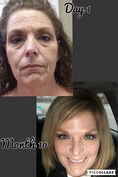 My day 1 and month 10 results. Nerium Night and Day creams consistent and correct usage!!!