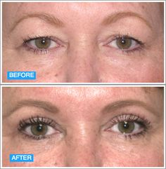 Before and After @Weiss Cosmetics and Laser Procedures #Upper#Lower#Eyelid#Plastic#Surgery#ophthalmologist#Newport Dr. Richard Weiss, Dr. Richard A. Weiss, Dr. Richard Weiss Newport Beach, Richard Weiss MD, Richard Weiss Newport Beach, Richard Weiss MD Newport Beach, drweiss.com, www.drweiss.com, Richard Weiss, Dr. Weiss, Richard A. Weiss, Weiss Cosmetic, Weiss Cosmetic & Laser Procedures
