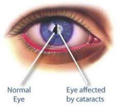 Cataract if left untreated may even lead to complete blindness, so it becomes important to counter the same during the initial stages itself with some of the effective natural and home remedies.