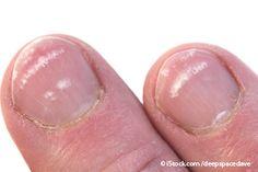 What do horizontal ridges on nails mean?