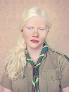 Portraits of Albinos by Gustavo Lacerda