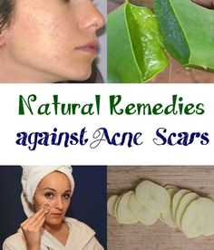 Natural Remedies against Acne Scars