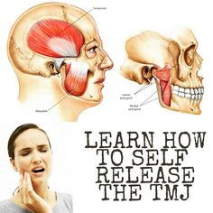 Acupuncture Pain Relief Jaw pain can affect your ability to eat, speak, and sleep. Learn about the possible causes of jaw pain as well as 10 ways to find relief. Jaw Exercises Tmj, Jaw Massage, Tmj Headache, Sore Jaw, Jaw Clenching, Tendinitis, Jaw Pain, Tooth Pain, Tooth Ache