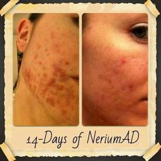 Nerium AD! Get yours today! Enjoy your skin once again :) www.stephpeters.nerium.com