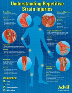 UNDERSTANDING REPETITIVE STRAIN INJURIES REMEMBER: R.I.C.E.  R = REST I = ICE C = COMPRESSION E = ELEVATION
