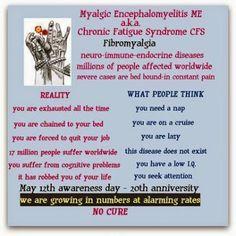 Understanding Fibromyalgia other diseases/disorders. Fibromyalgia Pain, Chronic Pain, Chronic Fatigue Syndrome, Chronic Illness, Myasthenia Gravis, Crps, Invisible Illness, Hypothyroidism, Fibromyalgia