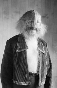 Stephan Bibrowski (1891–1932), better known as Lionel the Lion-faced Man, was a famous sideshow performer. His whole body was covered with long hair that gave him the appearance of a lion; this was likely due to a rare condition called hypertrichosis.