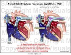 Ventricular septal defect VSD Ventricular Septal Defect, Heart Circulation, Congenital Heart Defect, Normal Heart, Cardiology, Med School, Nurse Practitioner, Blood Vessels, Traditional Tattoo