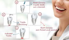 People are generally overwhelmed by the fear and anxiety when they hear about oral treatment and are especially scared of the #RootCanalTreatmentRichmond
