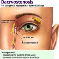 Dacryostenosis #pediatric #boards - peds - HEENT -