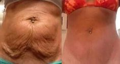After losing weight in the abdomen the first consequence is the emergence and formation of the so-called saggy skin a mass of fat and loose skin with fatty texture. In this article learn how to eliminate sagging skin cleverly. Aside from cosmetic surge Losing Weight Tips, Weight Loss Tips, Fast Weight Loss, How To Lose Weight Fast, Fat Fast, Reduce Weight, Flabby Stomach, Tonifier Son Corps, Loose Skin