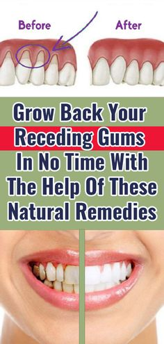 Health Day, Oral Health, Dental Health, Health And Nutrition, Health Tips, Health Fitness, Grow Back Receding Gums, Reverse Receding Gums, Home Remedies Beauty