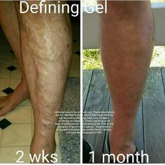 Got varicose veins? There's nonsurgical help with Defining Gel, as you can see. By using Defining Gel for ☝ 1 month, his results speak for themselves. https://plus.google.com/101915138552998576318/posts/ZtvrS744796
