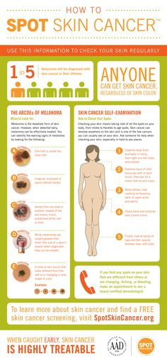 This poster shows people who don't know too much about skin cancer, how to identify one and teaches people some interesting facts about skin cancer, to raise awareness about it. In America, this problem is prevalent, as shown by the 1 in 5 people being diagnosed with it. It also teaches us about the irregularities that cancer moles show.
