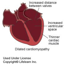 #Cardiomyopathy, a term describing #heart muscle diseases, is classified in three different forms in #cats. Take a look! #VCAAnimalHospitals