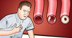 8 Foods That Can Help Clean Your Arteries Naturally And Help Prevent You From Heart Issues