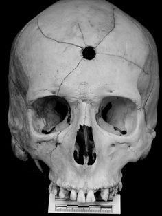 Gunshot skull. Neato.