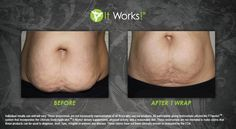 Baby belly blues? Tighten, Tone, & Firm your skin. Reduce the appearance of stretch marks. Katwraps@cox.net Kwood.myitworks.com