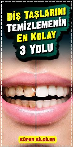 The definitive solution un Get rid of the calculus with this method. Adhesive and soft to the teeth, gums, dental fillings and dental prostheses. Natural Cough Remedies, Herbal Remedies, Dental Fillings, Constipation Remedies, Restless Leg Syndrome, Calculus, Teeth Cleaning, Dental Health, Health Quotes