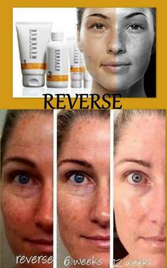 "REVERSE the sun damage to your skin! It only takes 5 minutes of your time to use the regimen then say ""bye bye sun damage and hello healthy skin""!"