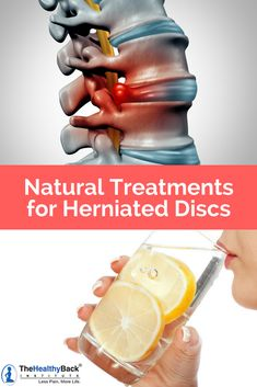Learn herniated disc relief tips and natural herniated disc treatments that work. Get last pain relief for herniated discs in your lower back upper back and middle back without costly drugs and surgeries. Middle Back Pain, Upper Back Pain, Lower Back Pain Causes, Chronic Lower Back Pain, Knee Pain Relief, Lower Back Pain Relief, Back Relief, Natural Pain Relief, Herniated Disc Lower Back