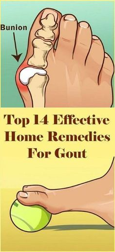 12 Best Natural Remedies For Gout images in 2019 | Gout
