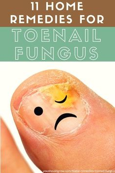 11 Home Remedies For Toenail Fungus That Actually Work, Holistic Health Tips for Beginners, Topical Treatments & Rubs Home Remedies, Natural Remedies, Health Remedies, Laser Eye Surgery Cost, Toenail Fungus Remedies, Toenail Fungus Treatment, Fungal Infection, Nail Tips