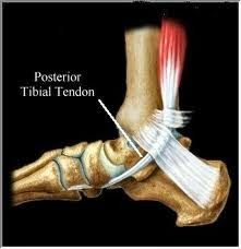 Living with Posterior Tibial Tendon Dysfunction (PTTD) - To Surgery & Beyond: ABOUT ME - AN INTRODUCTION