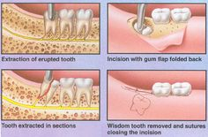 Tooth extraction is the removal of a tooth from its socket in the bone. If a tooth has been broken or damaged by decay, your dentist will try to fix it with a filling, crown or other treatment. Sometimes, though, there's too much damage for the tooth to be repaired. In this case, the tooth needs to be extracted