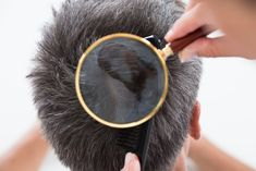 """"""""""" High Angle View Of Dermatologist Checking Patients Hair In Magnifying Glass Stoc… """""""" High Angle View Of Dermatologist Checking Patients Hair In Magnifying Glass Stock Photo , """""""" Hair Transplant Cost, Hair Doctor, High Angle, Going Gray, Magnifying Glass, Grey Hair, About Hair, Skin Treatments, Hair Loss"""