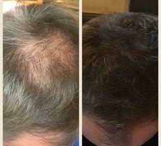Nutriol Shampoo for hair growth