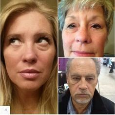 """""""Spanx for the face"""" instantly ageless by Jeunesse dramatically reduces the appearance of lines, wrinkles, puffy eyes and large pores in a matter of minutes. 9 out of 10 people that try it buy it. It contains the miracle peptide Argiriline which is clinically proven to deminish lines and wrinkles over time.enjoy the instant gratification and life changing results within 2 minutes and also the long term result of the peptide technology!  http://www.foreverflawless12.jeunesseglobal.com/"""