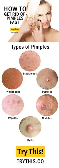 Recently I opened up about my year-long struggle with hormonal acne. And while that felt liberating I know that many acne sufferers are more interested Skin Tips, Skin Care Tips, Beauty Secrets, Beauty Hacks, Beauty Tips, How To Get Rid Of Pimples, Acne Skin, Acne Remedies, Facial Care