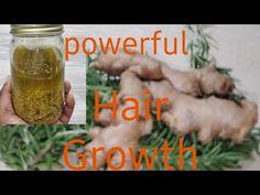 Curly Hair Growth, Hair Growth Oil, Ginger Oil For Hair, Postpartum Hair Loss, How To Make Rose, Hair Due, Healthy Scalp, Hair Remedies, Prevent Hair Loss